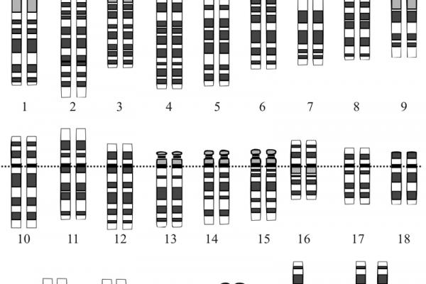 800px-down_syndrome_karyotype